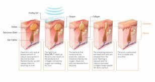 acne proceso
